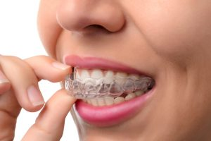 Invisalign for the Holidays Scarborough ME