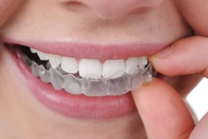 Busting Invisalign Myths Scarborough ME