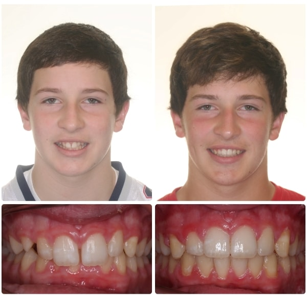Before and After Southern Maine Orthodontics in Scarborough, ME