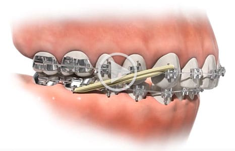 Class II Elastic Southern Maine Orthodontics in Scarborough, ME