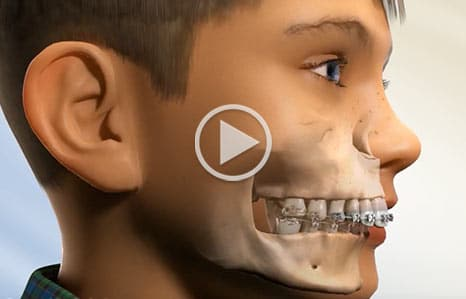 Class II Malocclusion Southern Maine Orthodontics in Scarborough, ME