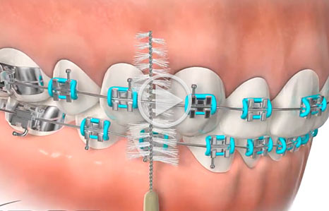 Cleaning Braces Southern Maine Orthodontics in Scarborough, ME