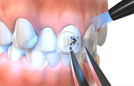Direct Bonding Southern Maine Orthodontics in Scarborough, ME