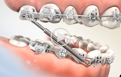 Espirit Appliance Southern Maine Orthodontics in Scarborough, ME