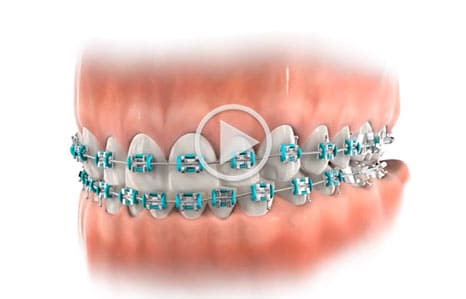 Orthodontic parts Southern Maine Orthodontics in Scarborough, ME